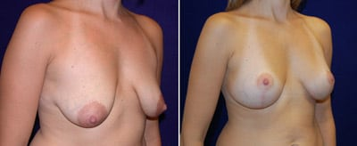 breast_lift01b